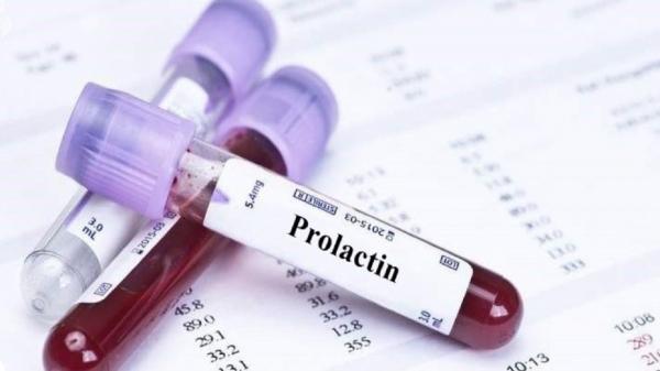 پرولاکتینوما را بشناسید